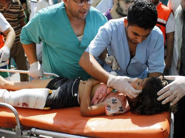 Medics give assistance to a wounded Palestinian girl upon her arrival at the hospital in Rafah, in the southern Gaza Strip on August 2, 2014 following an Israeli military strike. At least 296 Palestinian children and adolescents have been killed since Israel launched its offensive in the Gaza Strip against Hamas on July 8, the UN children's agency UNICEF said.