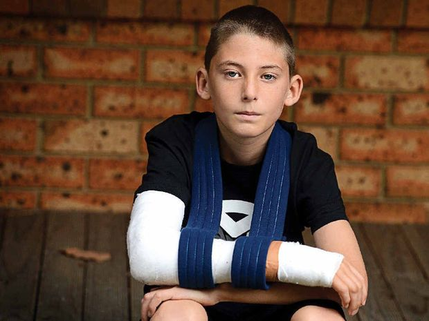 Thirteen year old James Webb of West Ballina had his arm broken at school.