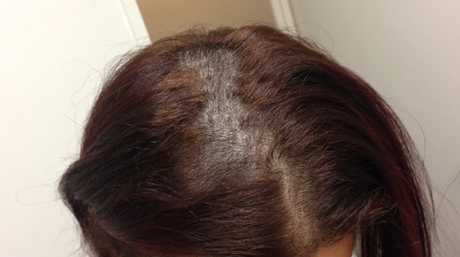 The woman's hair fell out after colour and straightening treatments