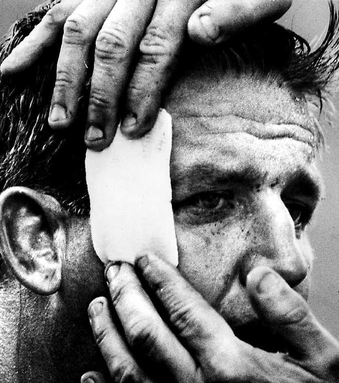 WARRIOR: Noel Kelly gets patched up ready for battle again.