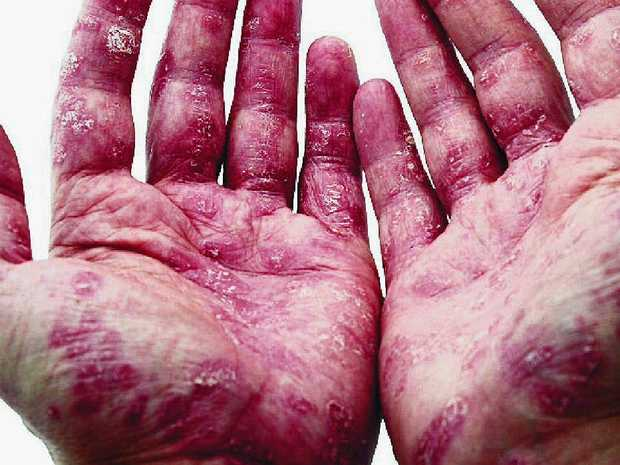 Allergies are more prevalent than ever and cleaning products are just one of the causes of allergies.