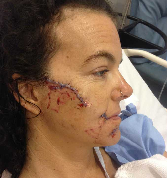 SAVAGE ATTACK: Gracemere's Fiona Stoddart suffered serious facial injuries in a dog attack at Gracemere on Wednesday morning.