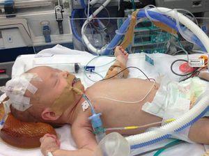 Infant battles rare heart defect