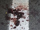 Police hunt brawlers after Good Samaritan injured