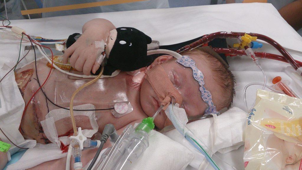 Kurt Blayney on life support.