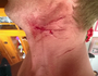 Rider injured by barbed wire strung at neck height