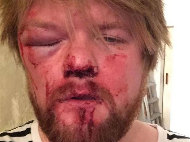 Mark Sinclair says he was attacked as he walked home with food from his local takeaway
