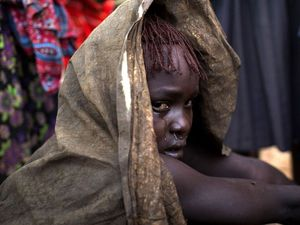 Reality of pain for children after Female Genital Mutilation