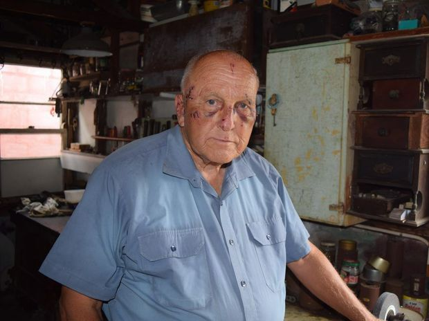 FORMIDABLE: Seventy year old Brian Parkes fought off the attacker who broke into his home.