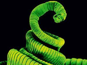 Man's headache caused by tapeworm running wild in brain