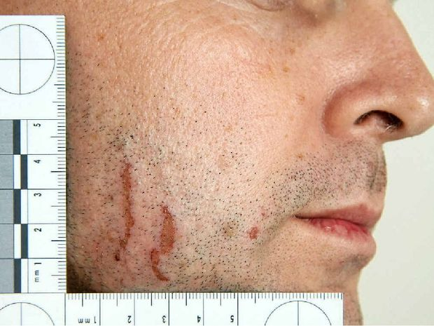 Police photographs of marks on Gerard Baden-Clay's skin were used in evidence in his murder trial.