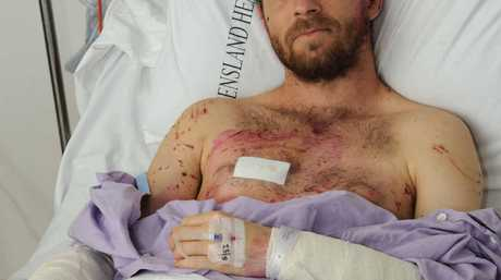 DOG ATTACK: Timo Fuchs in the Nambour hospital.