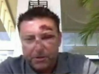 Australian golfer Robert Allenby talks to Sunrise following his abduction and robbery in Hawaii.