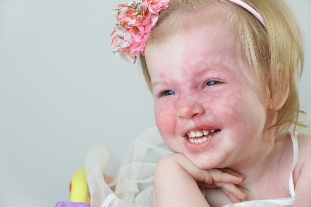 Sophia Lonergan was born with Sturge - Weber Syndrome, a condition her mum is trying to raise awareness on. Photo: Rob Williams / The Queensland Times