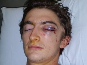 Toowoomba bashing victim longs for justice