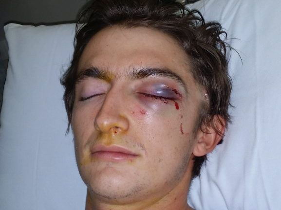 Cameron Kanofski in hospital last year after an assault outside the Portadown Hotel in Toowoomba left him with three cheekbone fractures and a fractured eye socket.