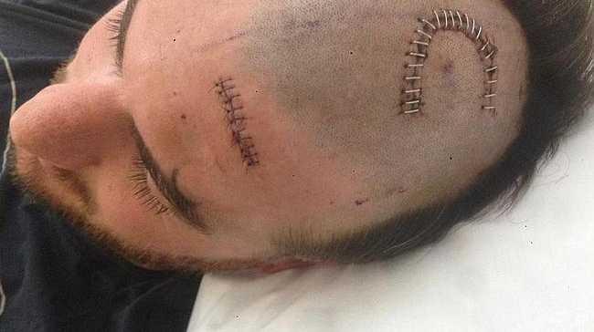 The lump found on Darren Jolly's brain was a benign cyst.