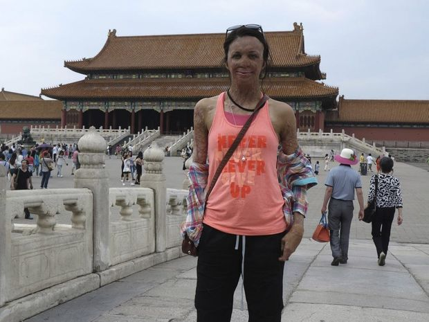 In this June 2, 2014 photo released by Interplast Australia & New Zealand, Turia Pitt stands in front of Forbidden Temple during a walk of almost 95 kilometers (59 miles) in eight days across the Great Wall of China.