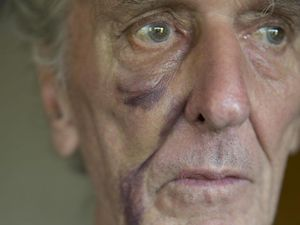 Doting grandad, 79, fears for his safety after bashing
