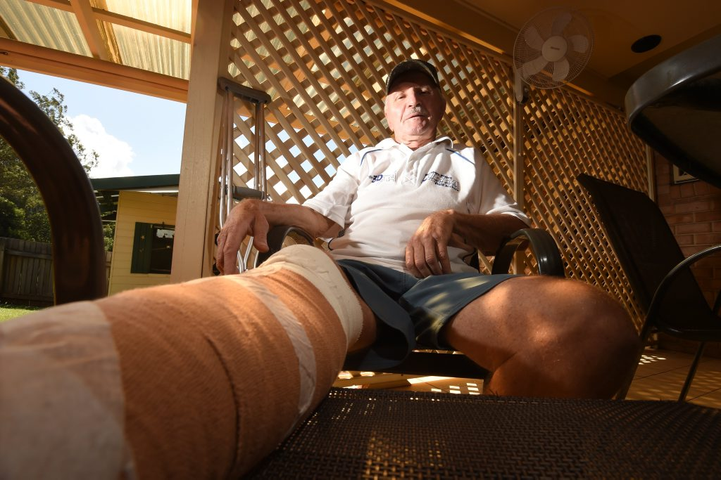 John Ski, of Lismore, slipped on the new cement blocks at Ballina's North Wall while fishing and says something should be done to make it safer. Photo Marc Stapelberg / The Northern Star