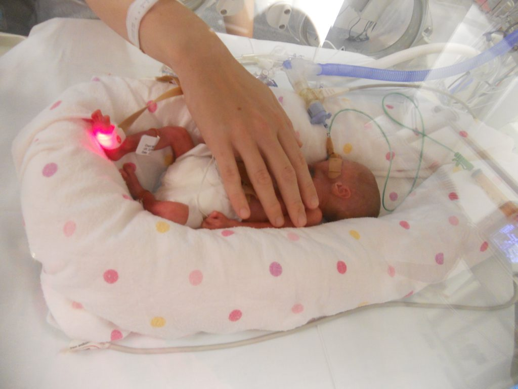 Ava Riddle was born 15 weeks premature.