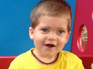 Surgery the last hope for toddler twin with seizures