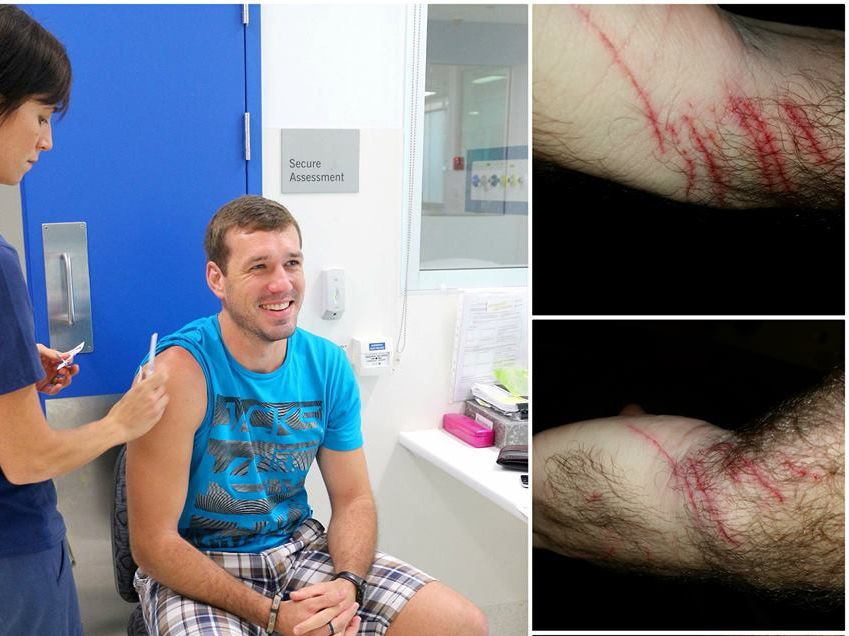 Billy Nel's wounds after being attacked by a bat while jogging.