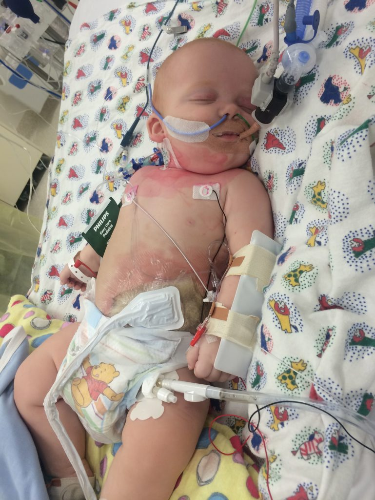 Eight-month-old Mason spent almost three weeks in hospital from February 25 after being infected by a flesh-eating bacteria.