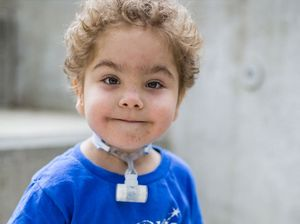 Child cured of potentially fatal illness with 3D-printing