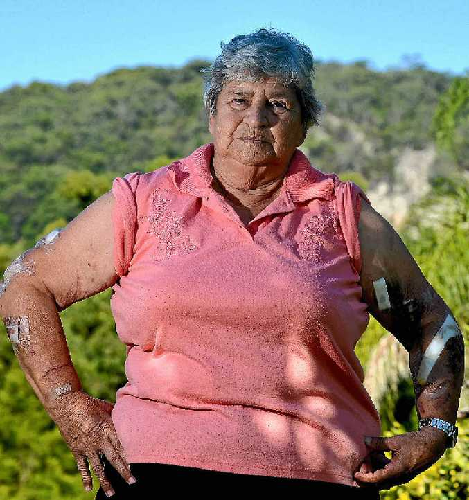 SHOCKED: Ninderry great grandmother Esma Armstrong, savagely attacked by a female kangaroo protecting her joey, is warning others to be careful.