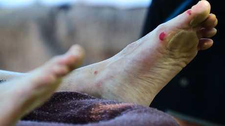 The blisters show on winner Dave Kalinowski's feet post-race at the finish of Ultraman Australia at Noosa Main Beach.