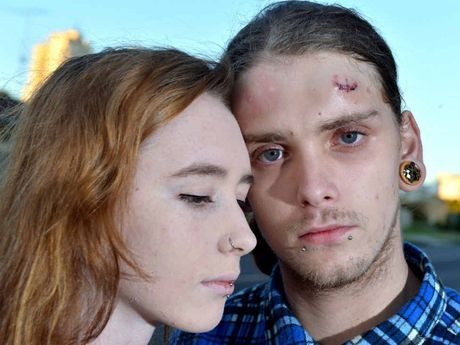 SHOCKED: Joanna Morrison and Joshua O'Neill, bearing the marks of an iron bar attack, are shaken up after robbed by thugs in a Mooloolaba street.