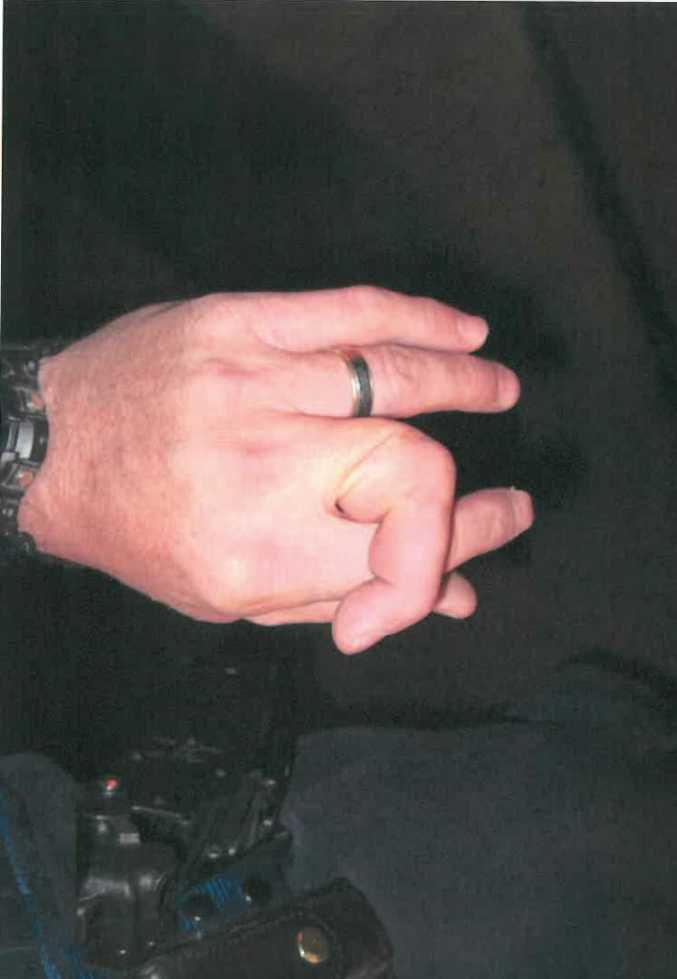 An Ipswich police officer s finger were twisted and broken when he was assaulted in Lowood. Photo: Contributed