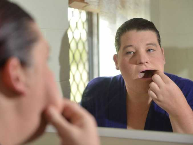 TOOTH ACHES: Sarah Mannion had the wrong tooth extracted by a dentist at the Gympie Hospital this week. Craig Warhurst