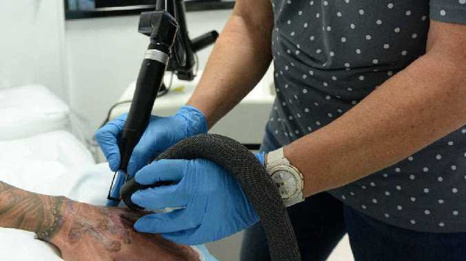 TREATMENT: Another scarring victim at VanishInk, the only Bundaberg business licensed to use laser tattoo removal machines.