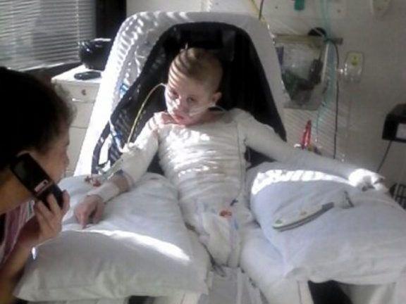 Millmerran burns boy Caleb Gundy, 8, has woken from an induced coma after 27 days.