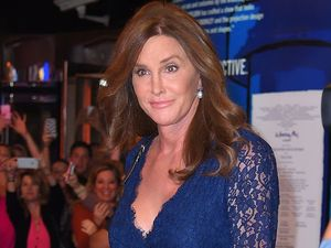 Caitlyn Jenner had beard removed in '80s