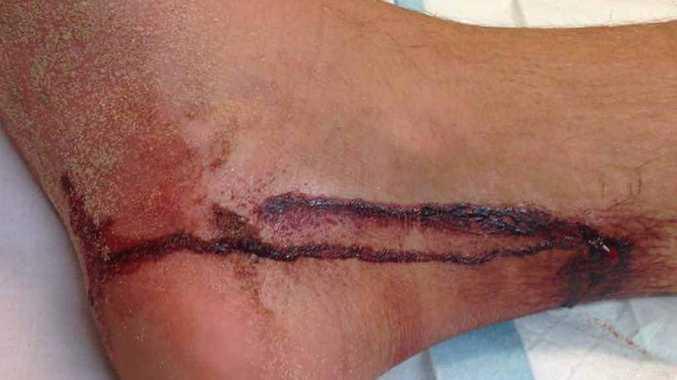 Mr Wickham's battle wound.