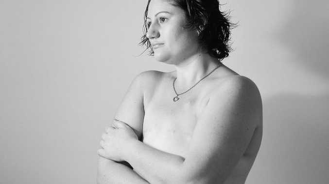 Lana Rhodes Want to show that cancer can affect young people, and has a huge impact on your life/body. Photo Mike Richards / The Observer