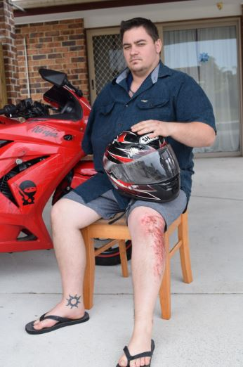 Karl Lemenkuehler is lucky to be alive after a hit and run on Saturday.