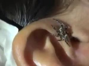 Spider crawls out of ear