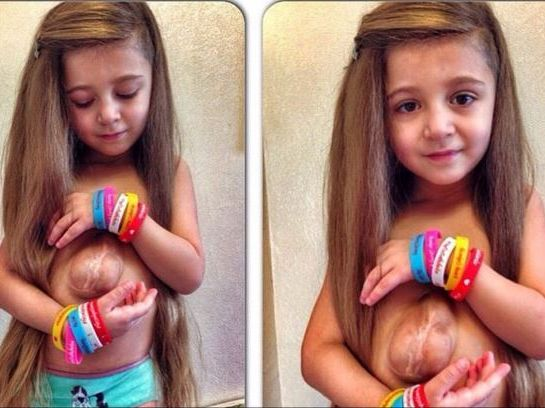 Six-year-old Virsaviya Boron was born with her heart and intestines outside her body. Photo / Instagram