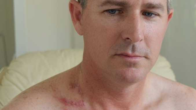 RELIEVED: Peter Parker shows the wound left after a melanoma was removed from his neck by Dr Stephen Rigby.