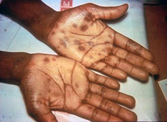 Secondary stage syphilis sores (lesions) on the palms of the hands. Source: CDC