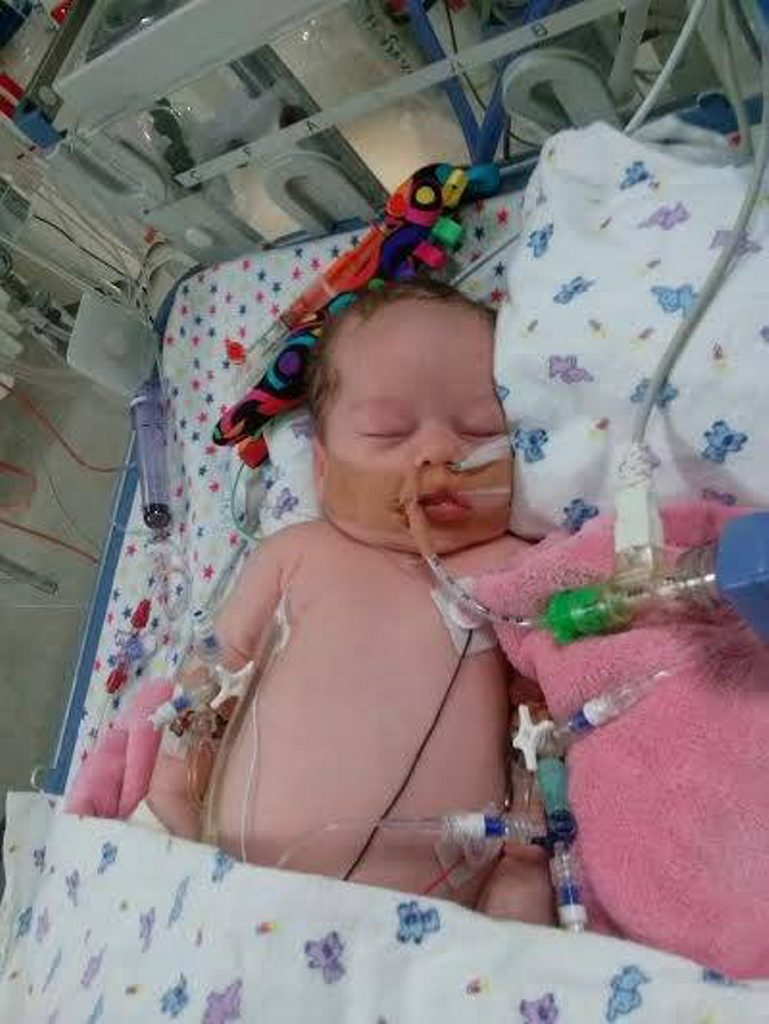 Baby Kori nearly died from meningitis caused by a Strep B infection.