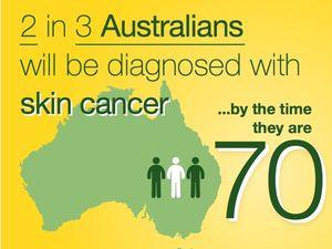 Sunburn scorches most Bundaberg adults every year