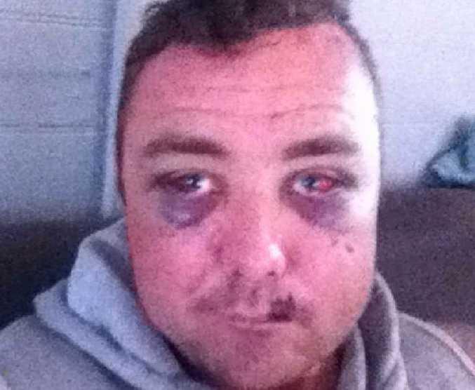 David Boyd after an Airlie Beach assault.