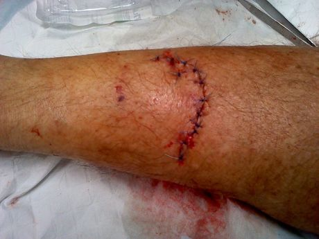 DOG BITE: Tony Wolfe sustained a serious gash on his leg after being attacked by two dogs while riding his pushbike in Sharon. Photo: contributed