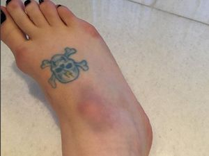Kelly Osbourne fractures foot