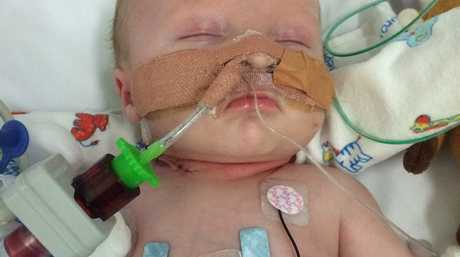 LITTLE FIGHTER: Baby Lincoln Elwell fights for life at Lady Cilento Children's Hospital.